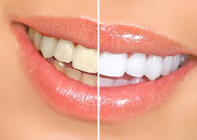Befor and After Teeth Whitening